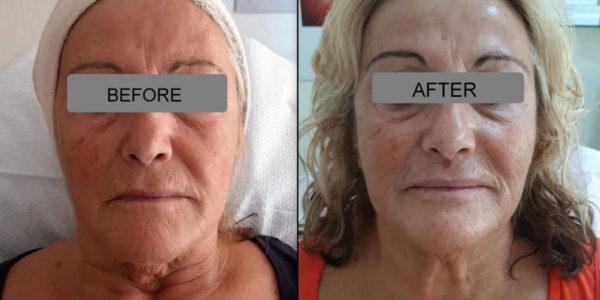 Face lifting με μεσοθεραπεία